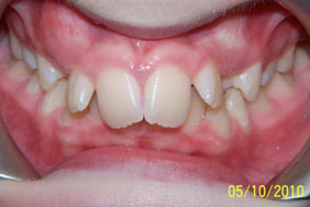 Malocclusion inherent or acute