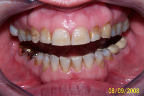 Tooth wear Abfractions Erosion Abrasion